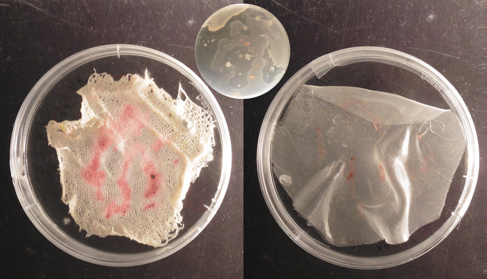 Arthrobacter agilis