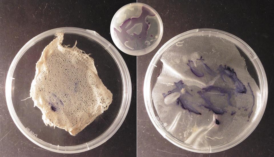 Janthinobacterium lividum